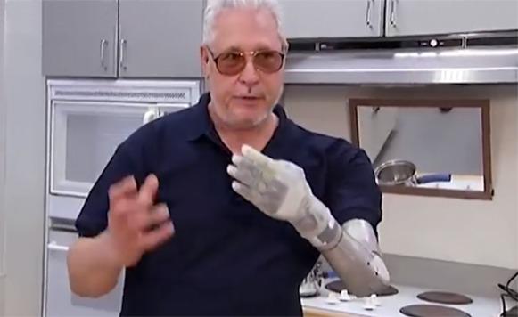 brazo bionico